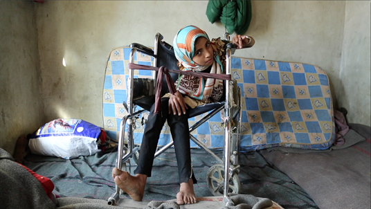 13-year-old Noran* suffered a life-changing injury after an airstrike in Yemen.