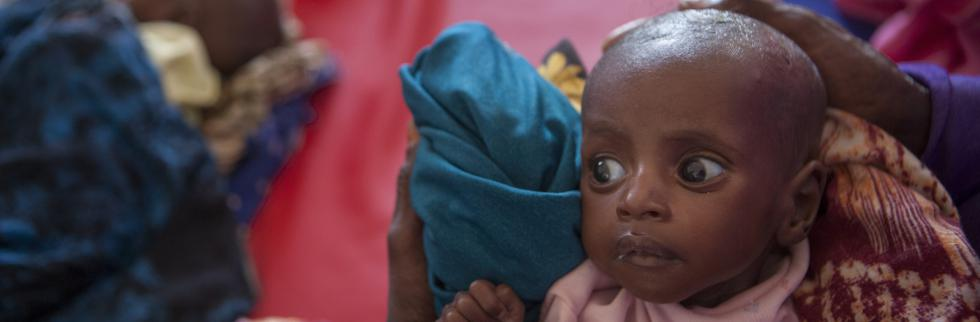 Somalia reaching a 'tipping point' as signs of malnutrition among children worsen