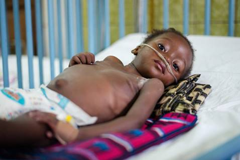 Femi*, 2, was admitted to hospital with pneumonia and tuberculosis in the Democratic Republic of Congo (DRC). See here for case studies and content