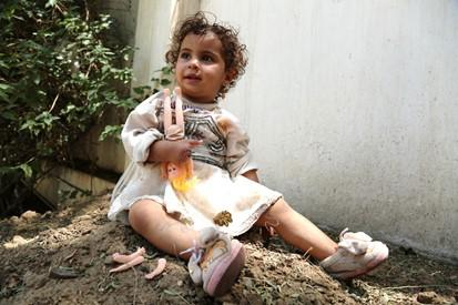 One-year-old Zuhoor was forced to have the fingers of her right hand amputated after being seriously injured by an airstrike near Sana'a