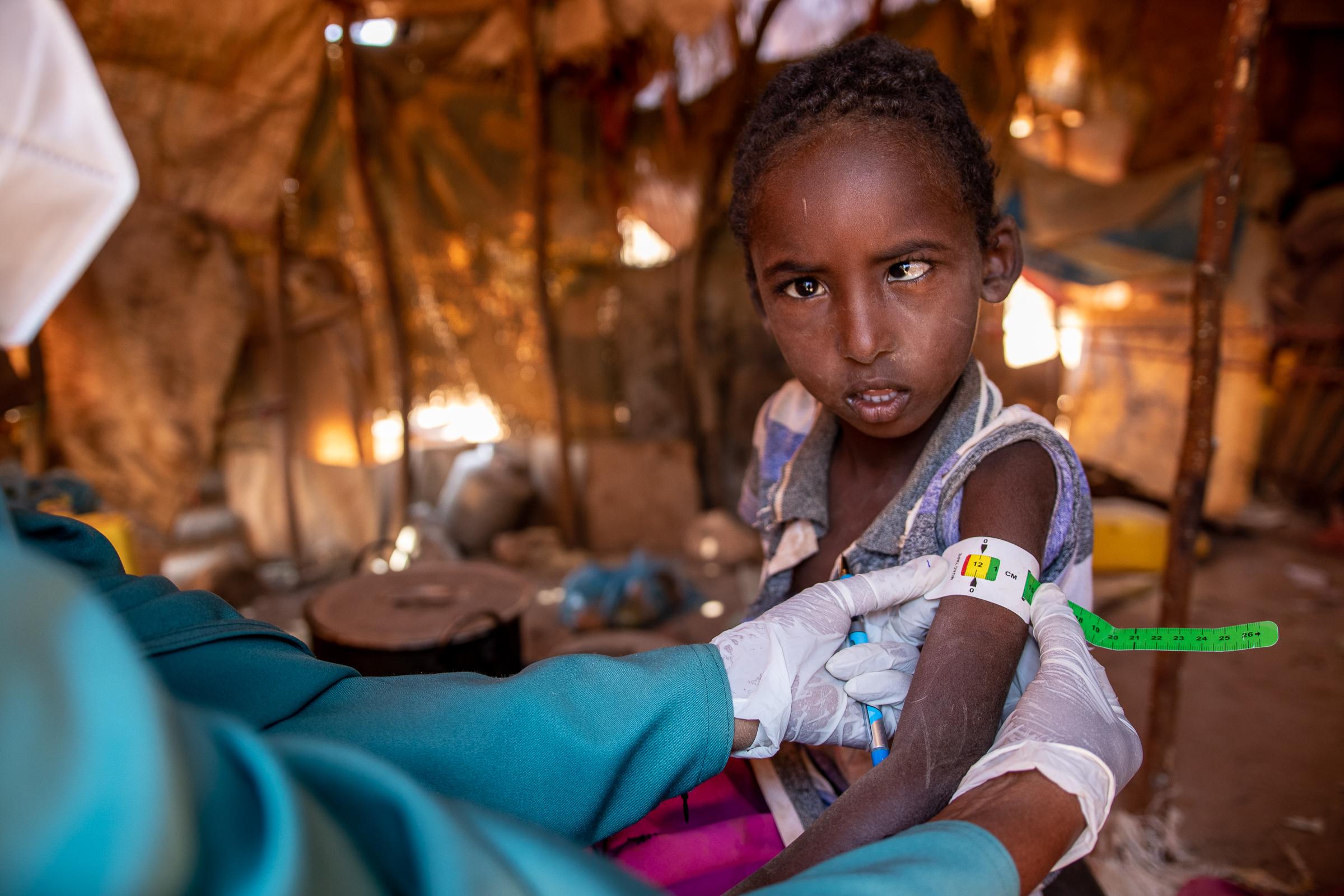 Muna checks a child for malnutrition