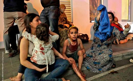 Wounded people wait to received help outside a hospital following an explosion in the Lebanese capital Beirut on August 4, 2020