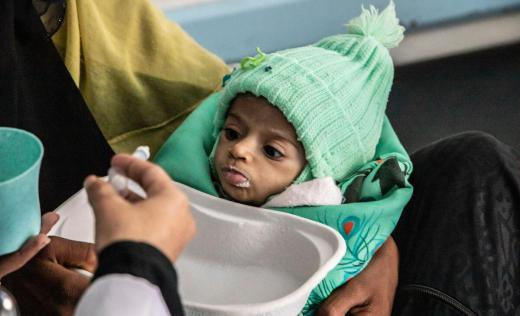 Haifa*, 11 months, is held by her mother as she gets treatment at the therapeutic feeding centre, Taiz, Yemen