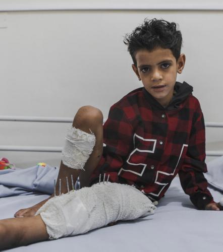 YEMEN: A quarter of all civilian casualties are children